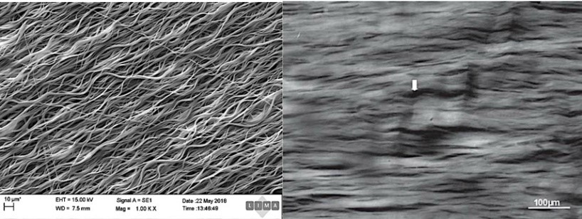 Pair of photos showing similarities between artificial tendonlike material and real tendon