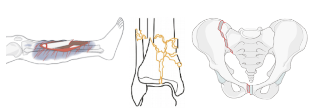 Illustrations of complex fractures