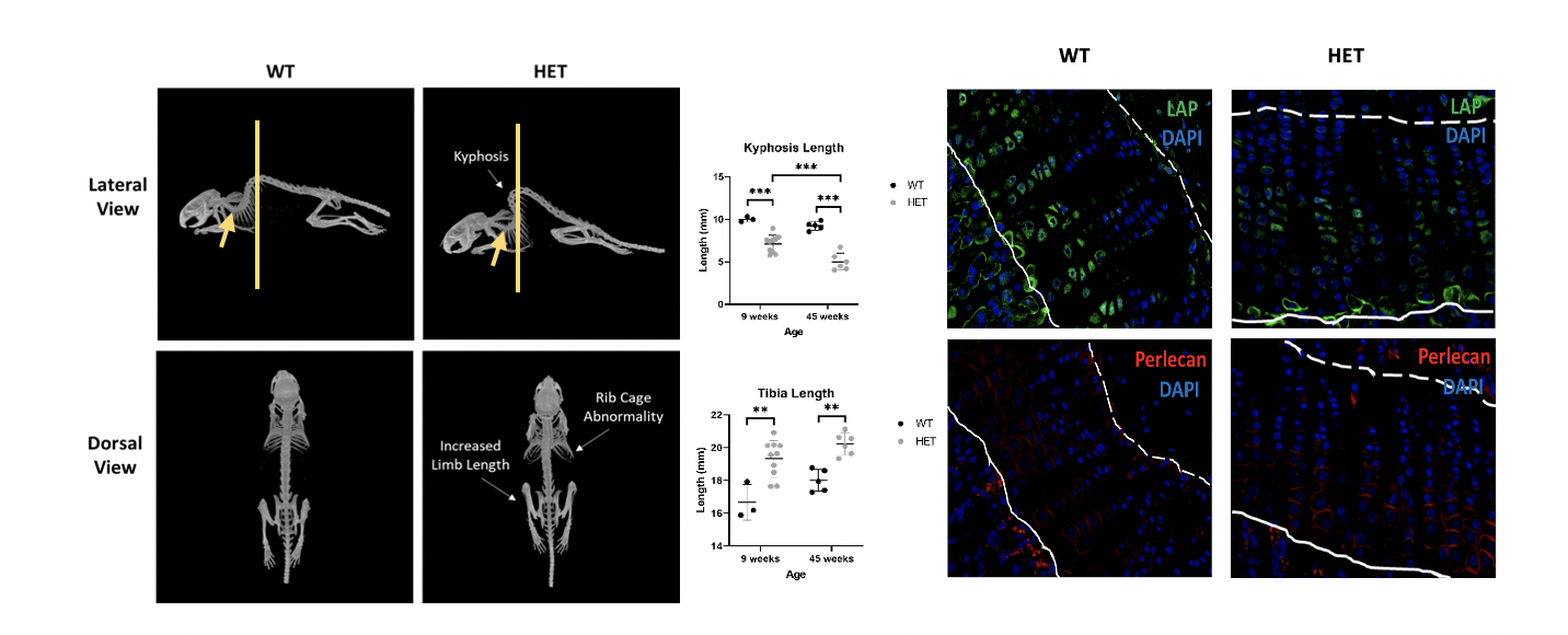 Musculoskeletal features of mice carrying a human type mutation in fibrillin-1