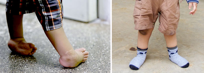 Clubfoot — Before and After